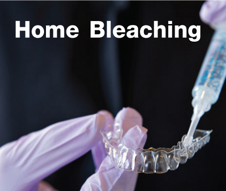 Home Bleaching For Yourself!!